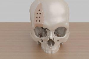 Cranial Implant Forehead