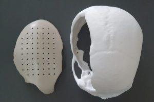 PEEK Cranial Implant